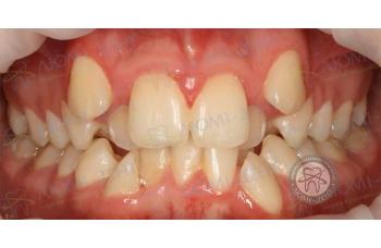 Скупченість зубів фото ЛюміДент