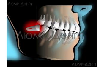 Зуб мудрості фото ЛюміДент