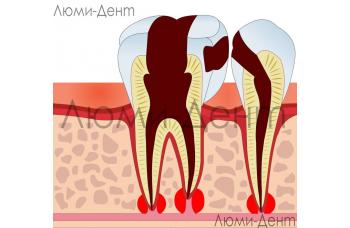Лікування періодонтиту в Києві в стоматології фото Люмі-Дент
