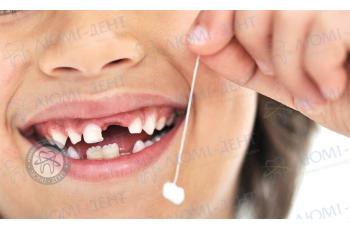 Удаление зубов фото ЛюмиДент