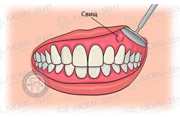 Зубний свищ