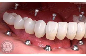 Незнімні зубні протези