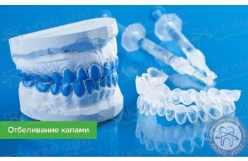 Відбілювання зубів капами