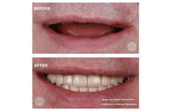 Повна і часткова втрата зубів