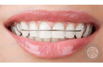 Скоби на зуби