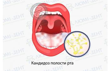 Кандидоз у роті