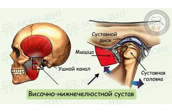 Захворювання скронево-нижньощелепного суглоба