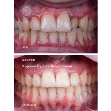 стоматолог-ортодонт Коржев Р. В. Киев
