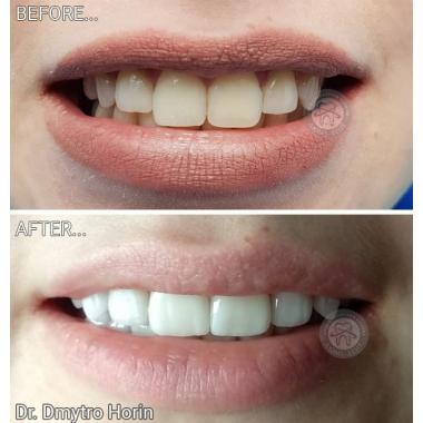 Примеры работ доктора Горин Дмитрий Васильевич Врач стоматолог-ортопед