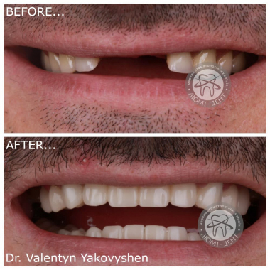 Пример работы врач Яковишен В.Н. Люми-Дент Киев