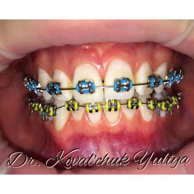Врач стоматолог-ортодонт Киев Люми-Дент