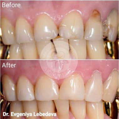 Врач стоматолог-терапевт Примеры работ доктора Лебедева Евгения Ивановна