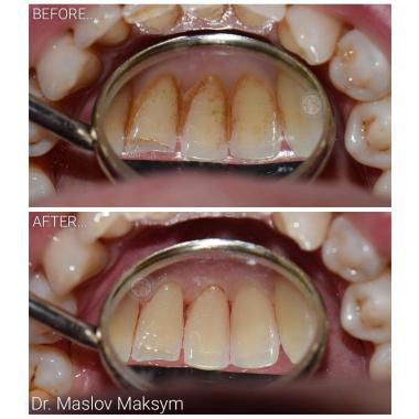 Врач стоматолог-терапевт Маслов М. А. Люми-Дент Киев