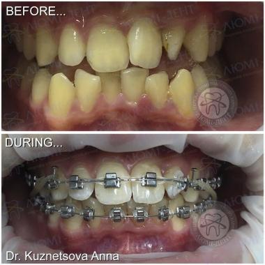 Врач стоматолог-ортодонт Киев Кузнецова А.О.