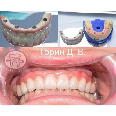 Примеры работ доктора Горин Дмитрий Васильевич Врач стоматолог-ортопед Киев Люми-Дент