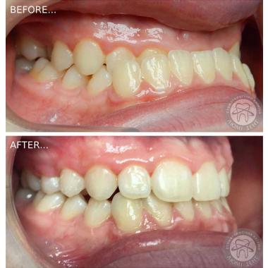 Врач стоматолог-ортодонт  выравнивание зубов Ковальчук Ю. С.