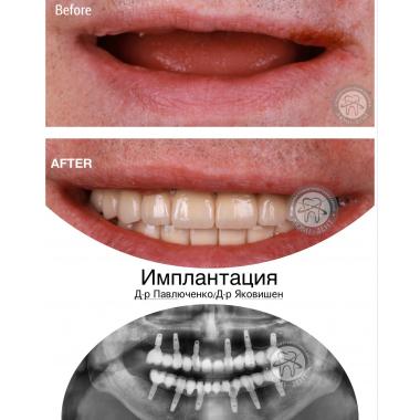 Врач хирург-имплантолог примеры работ доктора Павлюченко Е. Ю. Киев
