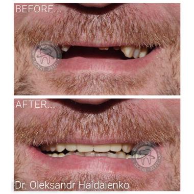 Примеры работ доктора Гайдаенко А. В. Врач стоматолог-ортопед