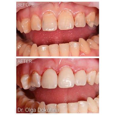 Примеры работ доктора Скубак Ольга Александровна стоматолог-терапевт