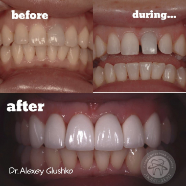 Примеры работ Врач стоматолог-ортопед Глушко Алексей Сергеевич Киев Люми-Дент
