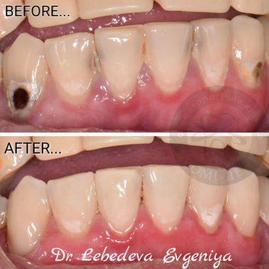 Лебедева Е. И. врач стоматолог-терапевт
