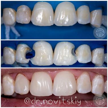Улыбка врач стоматолог Люми-Дент Киев