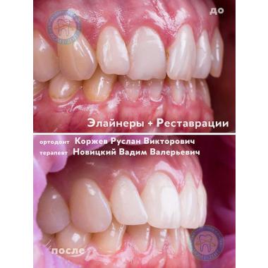 стоматолог-ортодонт Коржев Р. В. Киев Люми-Дент