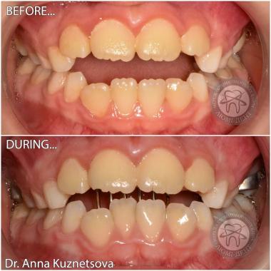 стоматолог-ортодонт Кузнецова А.О. Киев