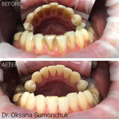 Примеры работ доктора Симончук О. В. Зубний гігієніст Люми-Дент