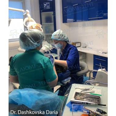 Доктор Дашковская Дарья в работе фото Люми-Дент