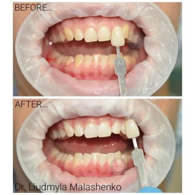 Малашенко Людмила Андреевна стоматолог-терапевт Киев Люми-Дент