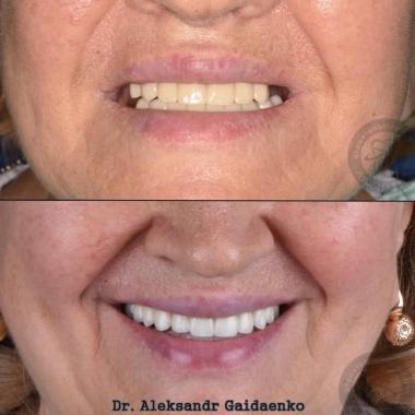 Протезирование зубов имплантация, работа врача Гайдаенко.