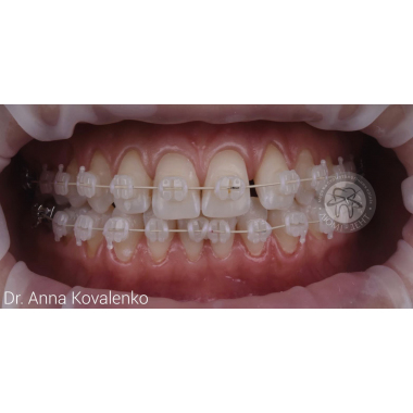 Врач стоматолог-ортодонт Коваленко Анна Александровна Брекеты Киев