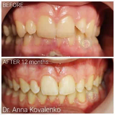 Врач стоматолог-ортодонт Коваленко Анна Александровна Киев