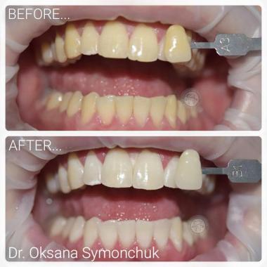 Примеры работ доктора Симончук О. В. зубной гигиенист