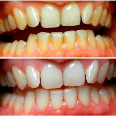 Примеры работ доктора Власюк С. П. Зубной гигиенист Киев Люми-Дент