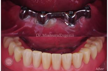 Протезирование Зубов Фото До После Лечения ЛюмиДент