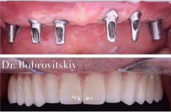 Имплантация Зубов Челюсти Фото До После ЛюмиДент