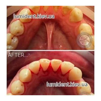чистка зубов ультразвуком, фото, до и после