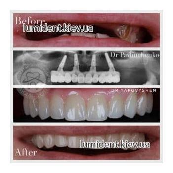 Протезирование зубов имплантация фото Люмидент