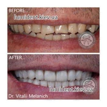 Протезирование зубов фото Люмидент