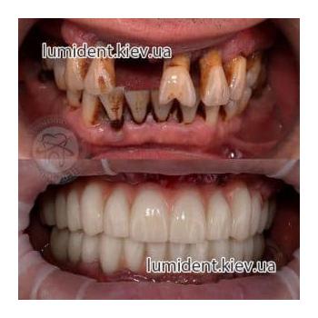 имплантация протезирование зубов до и после фото Люмидент