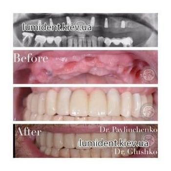 Имплантация зубов Киев фото картинки