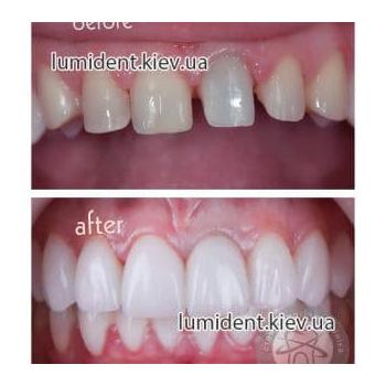 зубное протезирование фото Люмидент