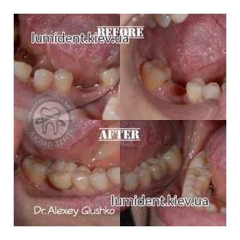имплантация зубов киев, фото, до и после