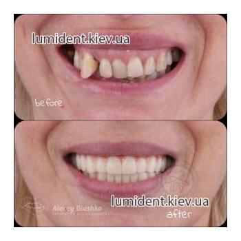 зубная имплантация фото люмидент