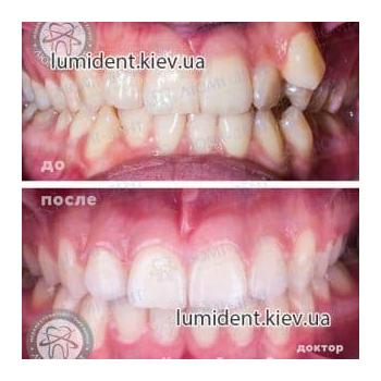 фото до и после брекетов Люми-Дент