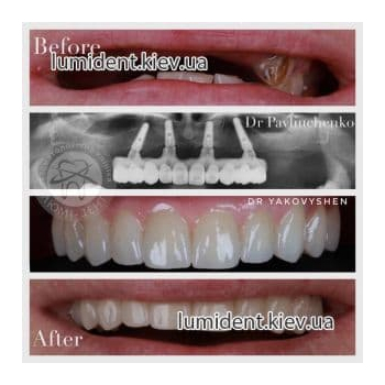 Имплантация протезирование зубов фото Люмидент