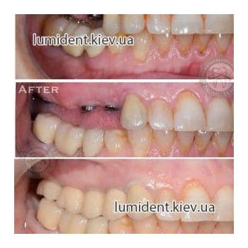 Имплантация зубов импланты фото до и после Киев Люми-Дент