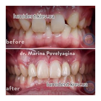 Correction of occlusion